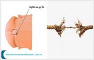 3 thông tin quan trọng cần biết về tình trạng đứt dây bao quy đầu