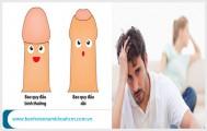 Bao quy đầu dài và cách điều trị hiệu quả