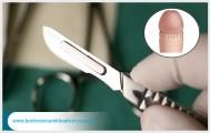 Bệnh viện cắt bao quy đầu theo quy trình như thế nào?