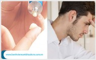Thuốc Bôi Viêm Bao Quy Đầu Nên Dùng Loại Nào Là Tốt?