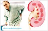 Chứng bệnh viêm đường tiết niệu có lây không ?