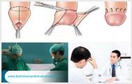 Phương pháp cắt bao quy đầu không đau