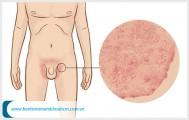 Thủ phạm gây ngứa vùng bẹn ở nam giới và cách xử lý