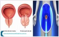 3 thông tin cơ bản cần biết về bệnh u phì đại tiền liệt tuyến
