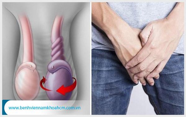 Một số bệnh lý phổ biến ở tinh hoàn