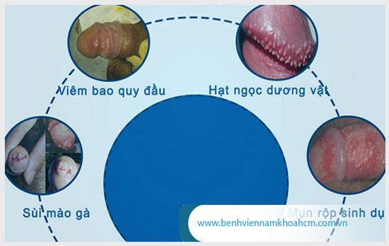Những bệnh lý có liên quan đến tình trạng cậu nhỏ nổi mẩn đỏ