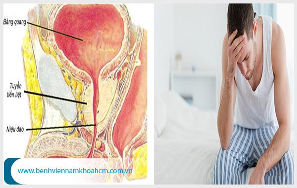 Có nhiều cách điều trị bệnh vôi hóa tuyến tiền liệt