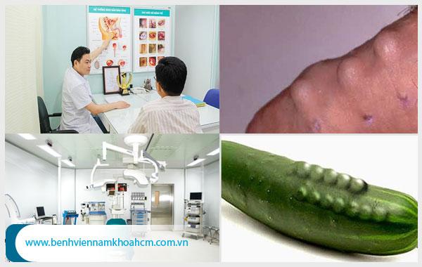 Phương pháp điều trị tình trạng dương vật bị cong hiệu quả hiện nay