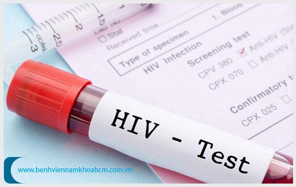 Nên xét nghiệm HIV ở đâu TPHCM?