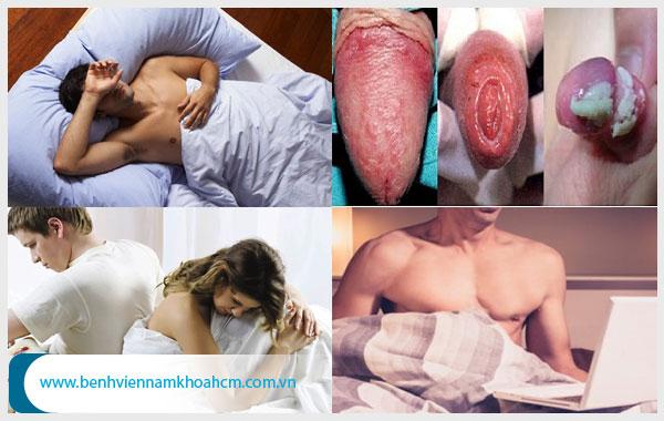 Nguyên nhân gây viêm da bao quy đầu