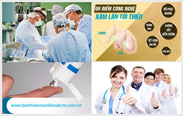 Phương pháp chữa trị dứt điểm viêm da bao quy đầu