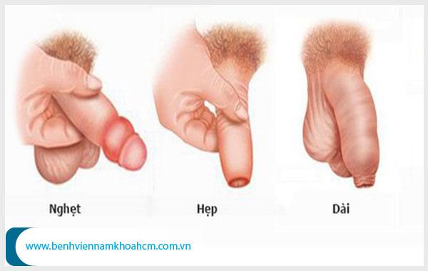 Những bệnh ảnh hưởng xấu đến sinh lý nam giới