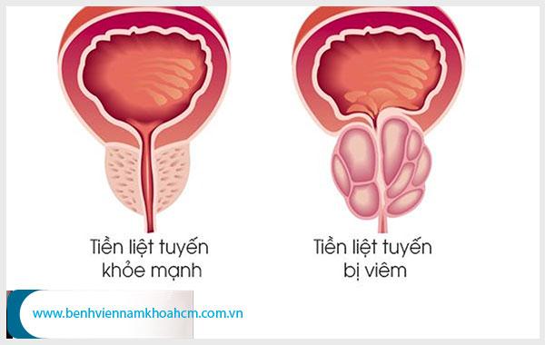Những bệnh nam khoa thường gặp mà nam giới không nên chủ quan