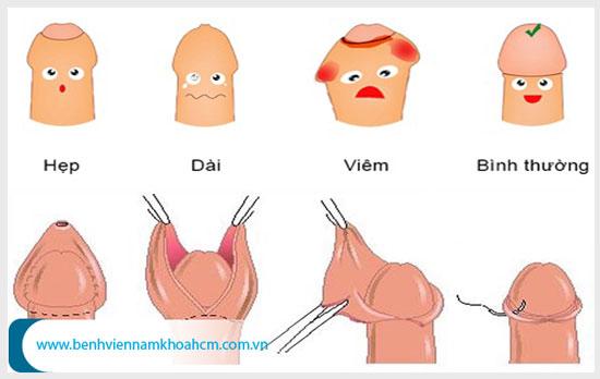 5 bước cắt bao quy đầu ở nam giới