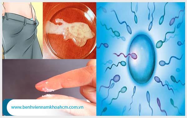 Có nhiều nguyên nhân làm tinh trùng bị vón cục