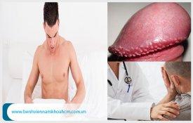 Những vấn đề cần biết về bệnh hạt ngọc dương vật